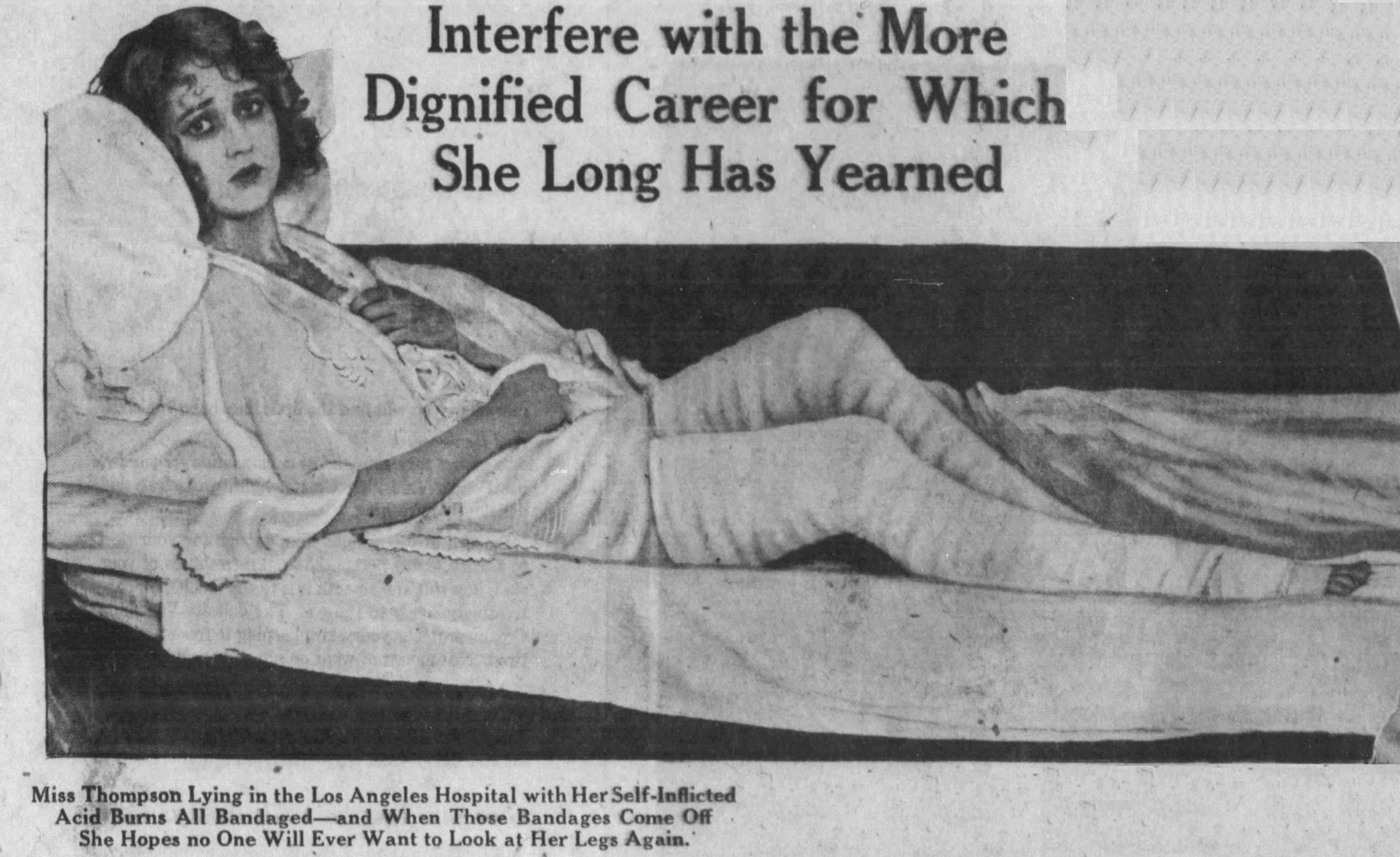 Lotus's legs SF Examiner March 8 1925