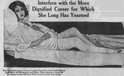 Lotus's legs SF Examiner March 8 1925